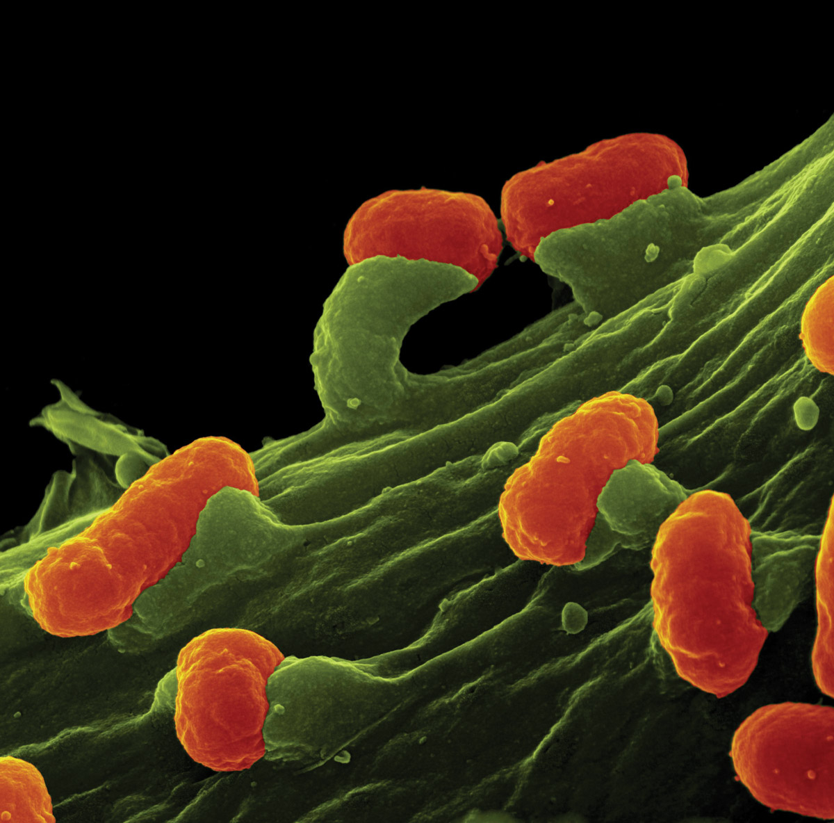 A colored scanning electron micrograph shows how EPEC infection occurs when the E. coli bacteria (orange) inject proteins into the host cells (green), forming pedestals to which they can attach.